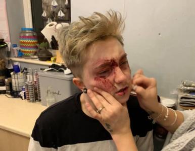 """20-letnia lesbijka po raz piąty pobita na ulicy. """"Mam napady lękowe"""""""