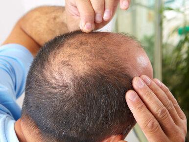 Naukowy sposób na łysienie