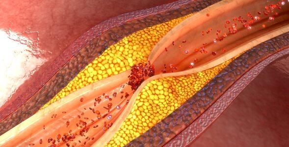 Quiz – ile wiesz o cholesterolu?